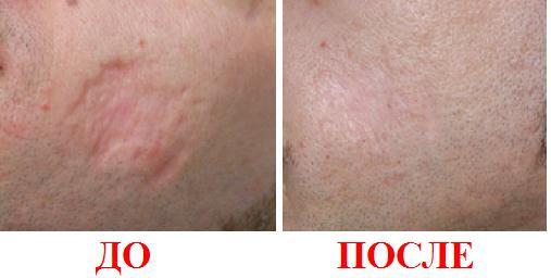 Лечение рубцов после акне дермобразия лазерная кул эпиляция цена