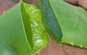 Алоэ – действенное средство по уходу за проблемной кожей