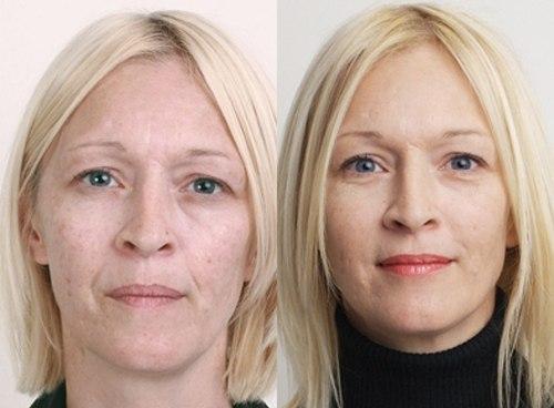 Влияние магнитов на кожу лица: инновационная маска для омоложения