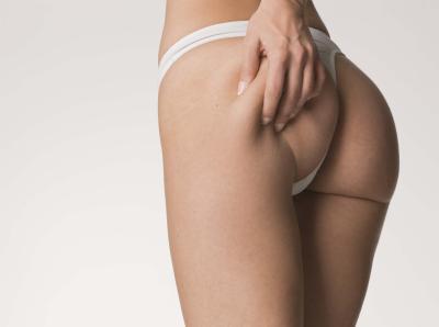 Женское здоровье: целлюлит, варикоз и гиперпигментация