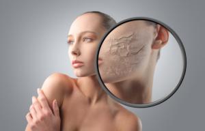 Эффективные средства для борьбы с шелушением и сухой кожей лица в зимний период