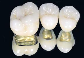 Преимущества коронок из металлокерамики